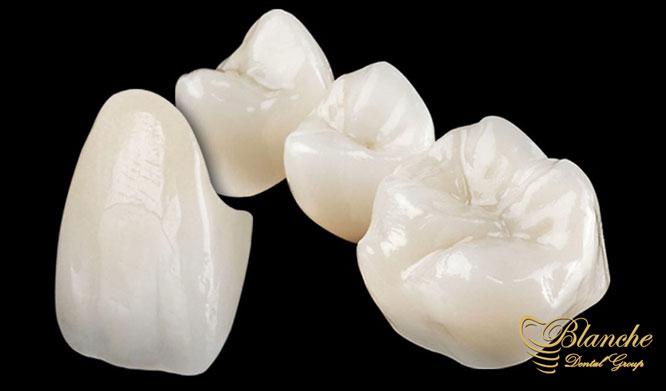 روکش تمام سرامیک دندان Advantages Ceramic Tooth Coating