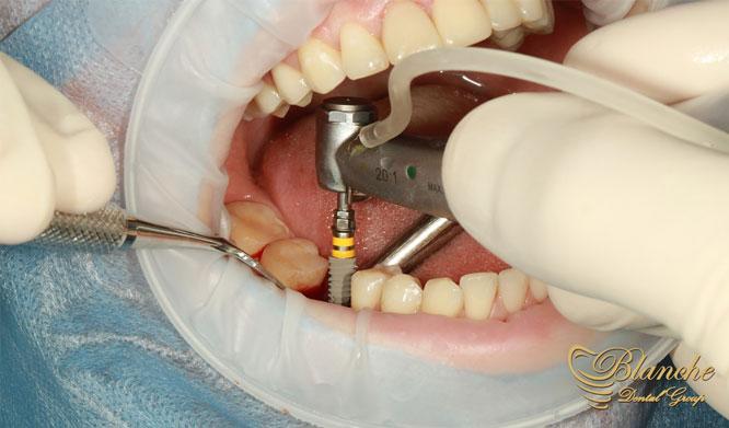 ایمپلنت های دندانی کانونشنال, Conventional implants,