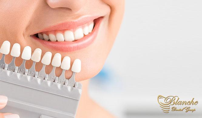 لمینت سرامیکی دندان Dental ceramic laminate