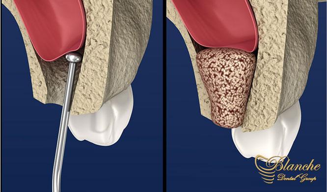 سینوس لیفت یا جراحی بالابردن سینوس, Sinus Lift,