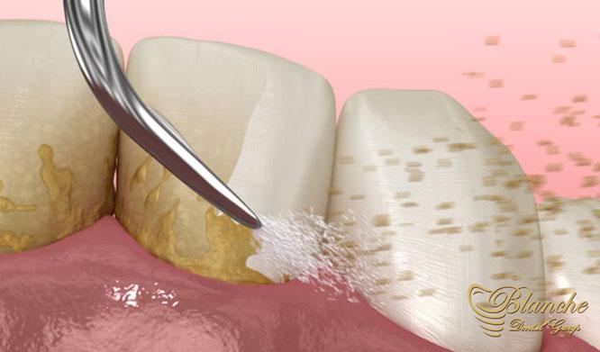 درمان های لثه Gum treatments جرم گیری و پاکسازی سطح دندانها و ریشه scaling-teeth