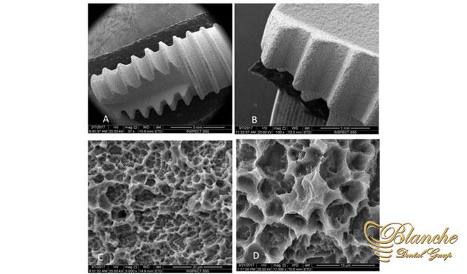 تسریع اتصال استخوان به ایمپلنت, Dental Implant Structure,