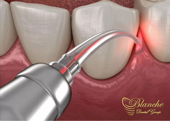 جراحی های لثه با لیزر, Laser Gingival Surgery,